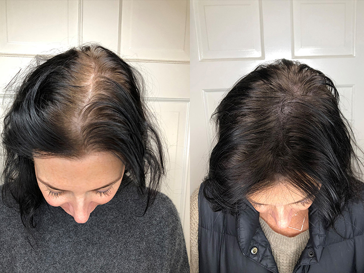 Patchy Hair Loss Treatment Tips